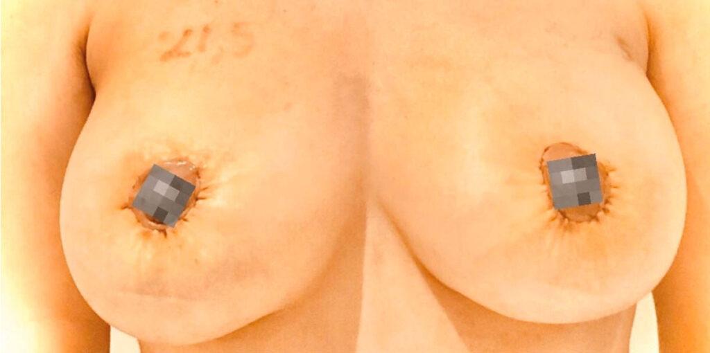 bröstlyft-efter-sasclinic