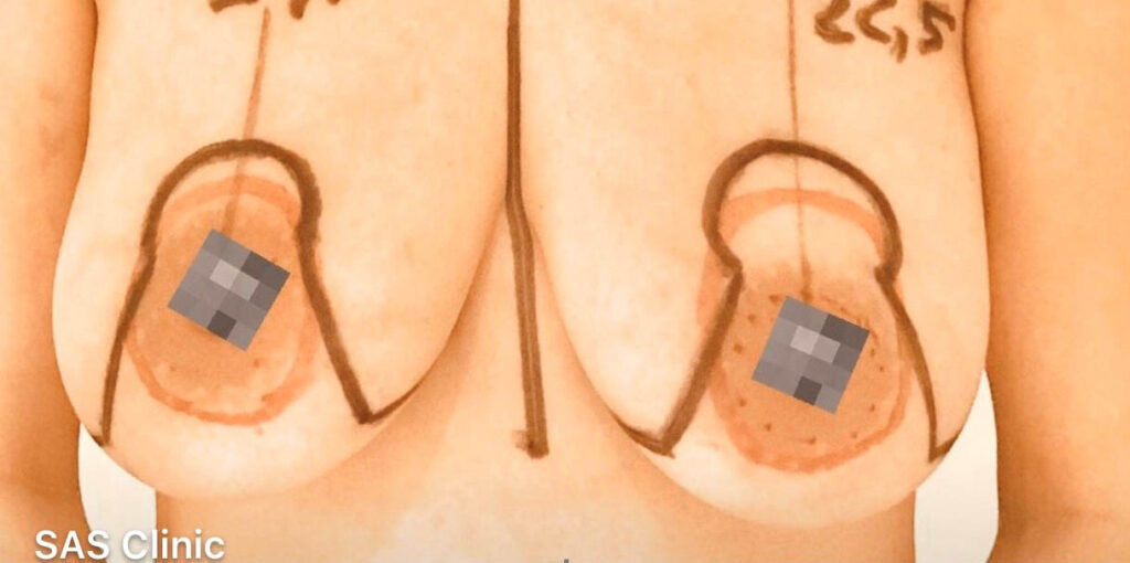 bröstlyft-före-sasclinic